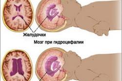 Мозг в норме и при гидроцефалии
