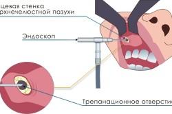 Эндоскопия для диагностики кисты