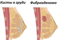 Кисты в груди и фиброаденома