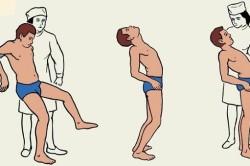 Нарушения координации при арахноидальной кисте