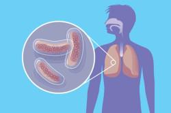Туберкулез - причина солитарной кисты почки