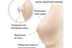 Видимые признаки кисты молочной железы