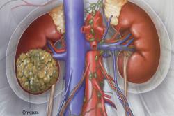 Злокачественная опухоль почки от кисты