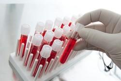 Обследование крови при кисте прозрачной перегородки головного мозга