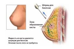 Биопсия кисты груди
