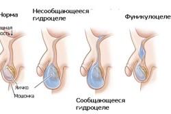 Схема фуникулоцеле