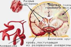 Инсульт - причина ретроцеребеллярной арахноидальной кисты