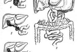 Кистозная трансформация желчных протоков