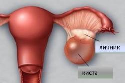 Образование кисты в яичнике