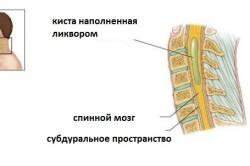 Схема периневральной кисты