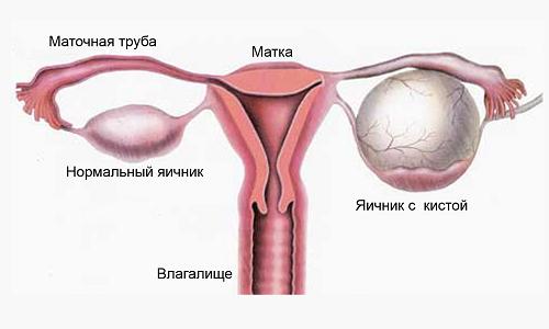 Схема кисты яичника