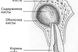 Схема радикулярной кисты