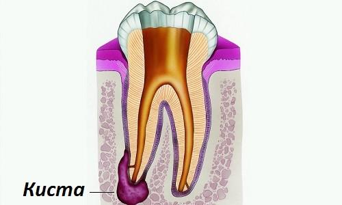 Схема кисты зуба