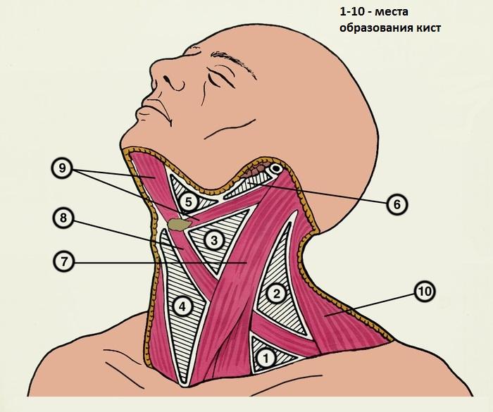 фото срединная киста шеи