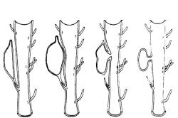 Схема формирования парауретральной кисты