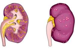 Пиелонефрит - осложнение парауретральной кисты