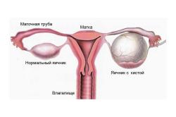 Схема яичника с кистой