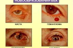 Разновидности заболеваний глаз