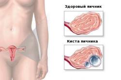 Здоровый яичник и киста