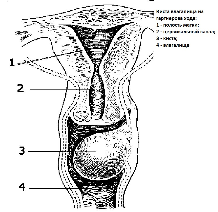 Фото заращенной вагины фото 647-148