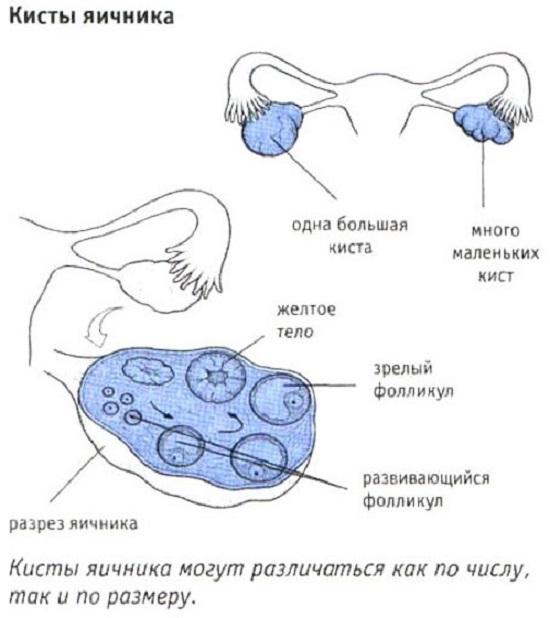 masturbatsiya-pri-kiste-yaichnika