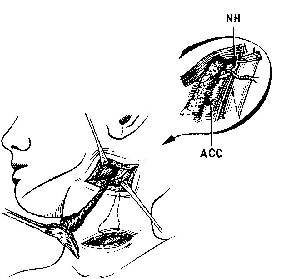 Кисты и свищи шеи боковые