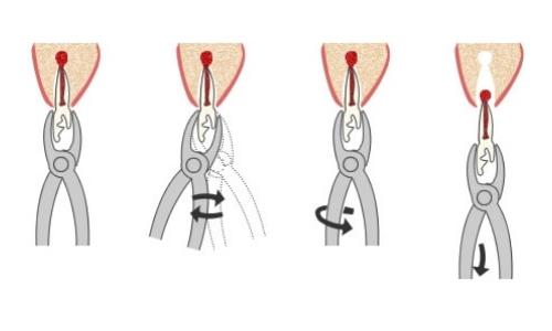 Как сделать узел на зуб