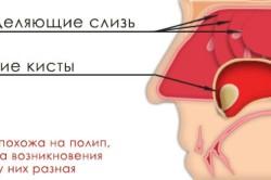 Образование кисты в гайморовой пазухе носа